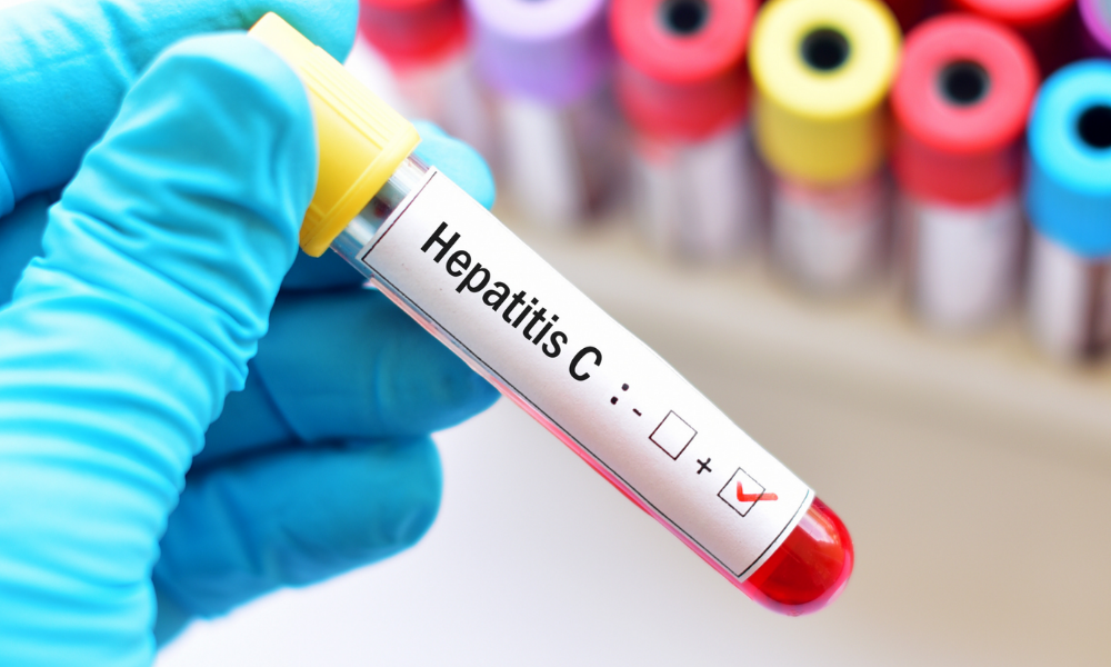 Hepatitis C screening